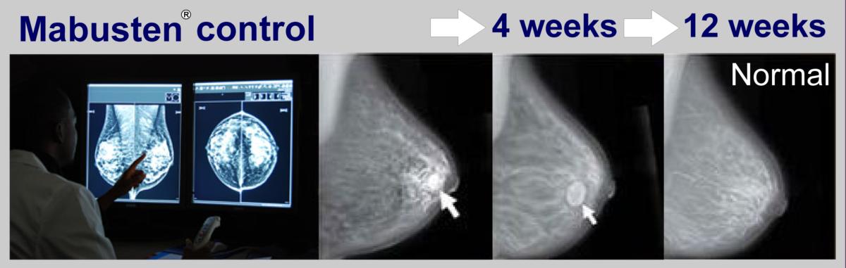 Железистая мастопатия молочной железы лечение.