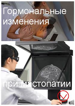 Гормональные нарушения при мастопатии