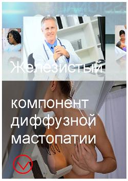 Смешанная мастопатия с преобладанием железистого компонента 13