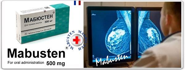 Смешанная мастопатия с преобладанием железистого компонента 6