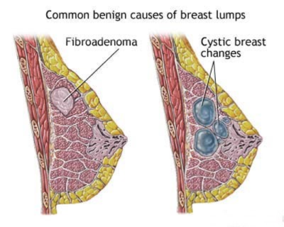 проявления фиброаденомы молочной железы