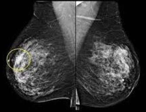 Подобрать размер имплантов груди