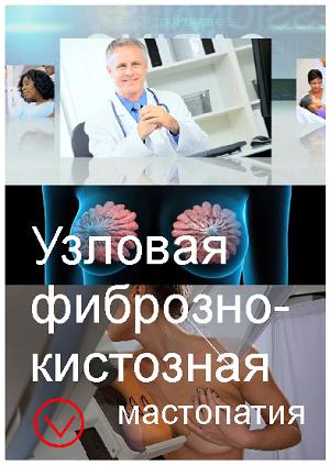 Узловая фиброзно-кистозная мастопатия: этиология, диагностика и лечение