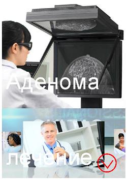 Аденома молочной железы: лечение