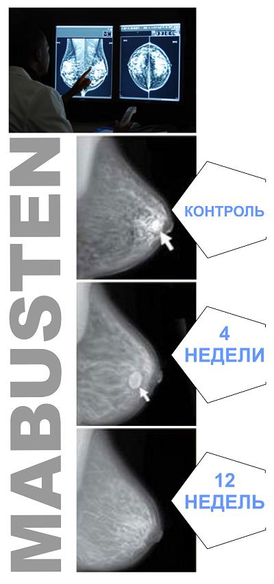 Температура при мастопатии 46