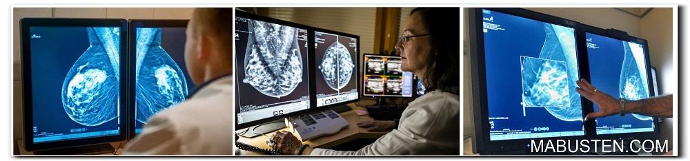 Диагноз мастопатия ФКМ - ДФКМ (форм СФ, ЖК, КК) - доброкачественные опухоли молочной железы, исследования при терапии диагноза